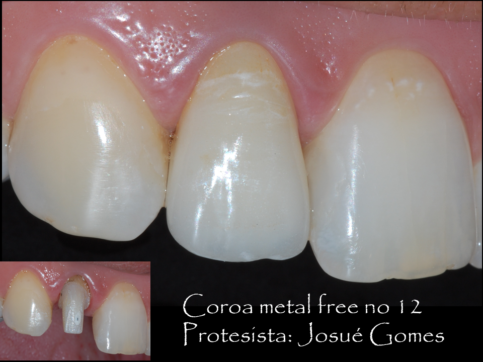 dente de porcelana sobre o incisivo lateral direito