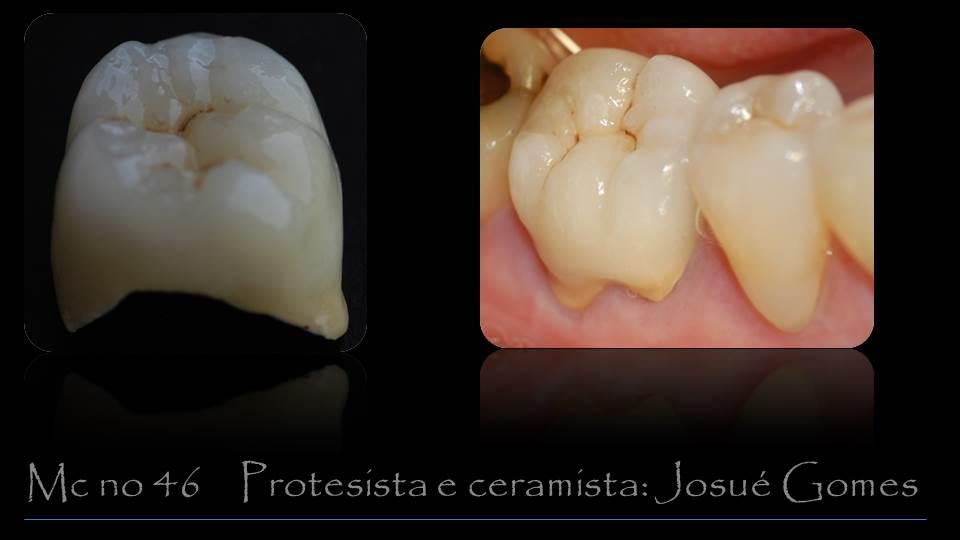 dente de porcelana sobre um molar que são os dentes do fundo da boca