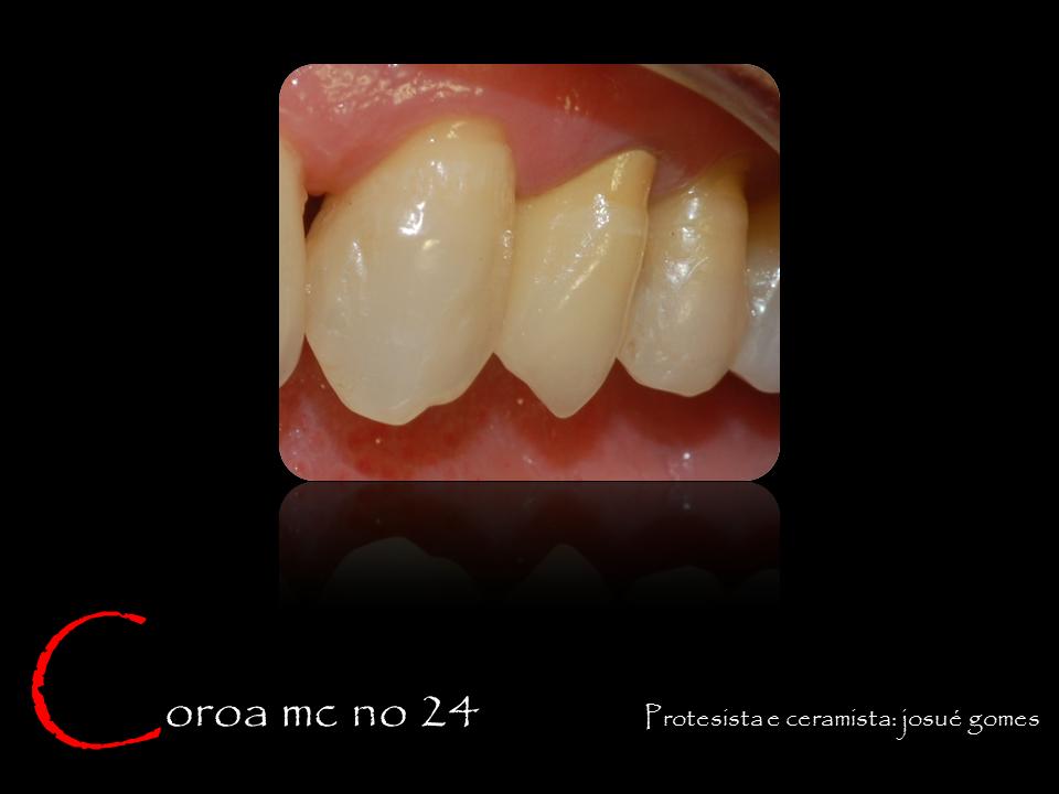 dente de porcelana sobre um pré-molar superior