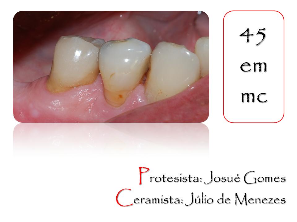 dente de porcelana sobre um pré-molar inferior